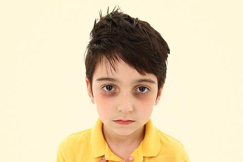 7 Causes and 6 Best Tips for Dark Circles Under Eyes of Kids